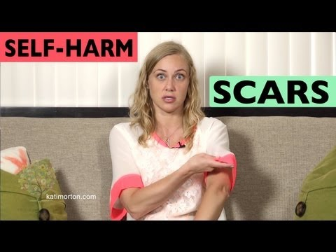 Hiding Self-Harm Scars? Dealing with them - Mental Health Videos with Kati Morton