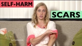Hiding Self-Harm Scars? Dealing with them - Mental Heath Videos with Kati Morton