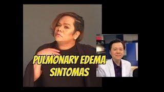 Chokoleit : Pulmonary Edema Sanhi ng Pagkamatay - ni Doc Willie Ong #680 thumbnail
