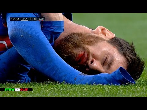 Cristiano Ronaldo, Messi & Neymar ● Horror Fouls,Bleeding ● 1080i HD #CristianoRonaldo #Neymar