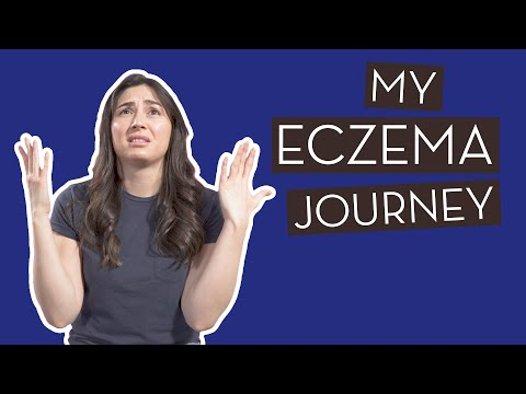 My Eczema Journey | How I Manage My Eczema Naturally}