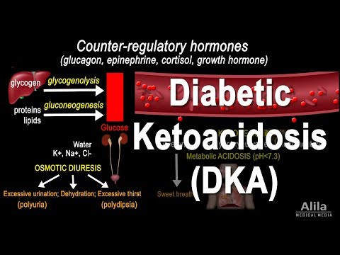Diabetic Ketoacidosis (DKA) Pathophysiology, Animation