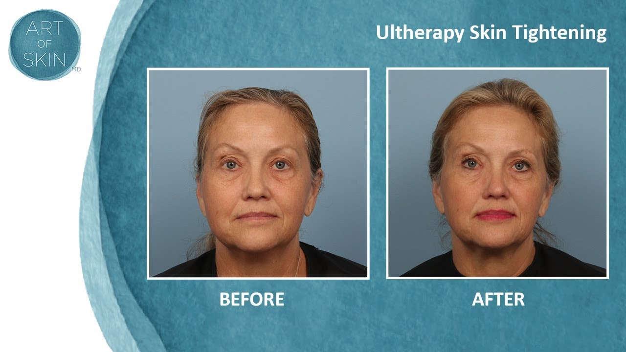 Ultherapy Skin Tightening Made Comfortable For Patients - Art of Skin