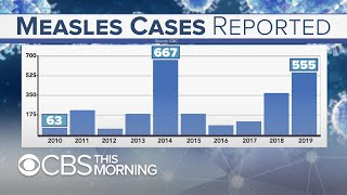 Behind the latest spike in measles cases