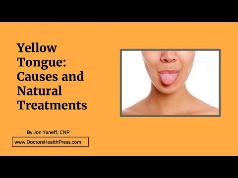 Yellow Tongue: Causes and Treatments | Doctors Health ...