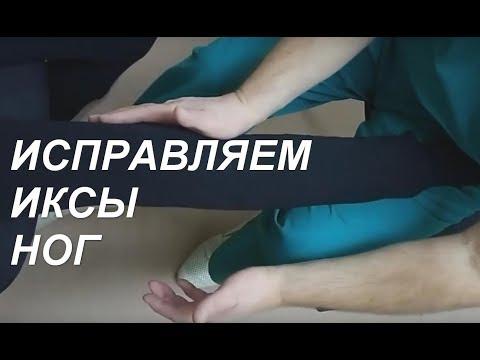 Как сделать ноги ровными. Исправляем иксы ног (genu Valgus)