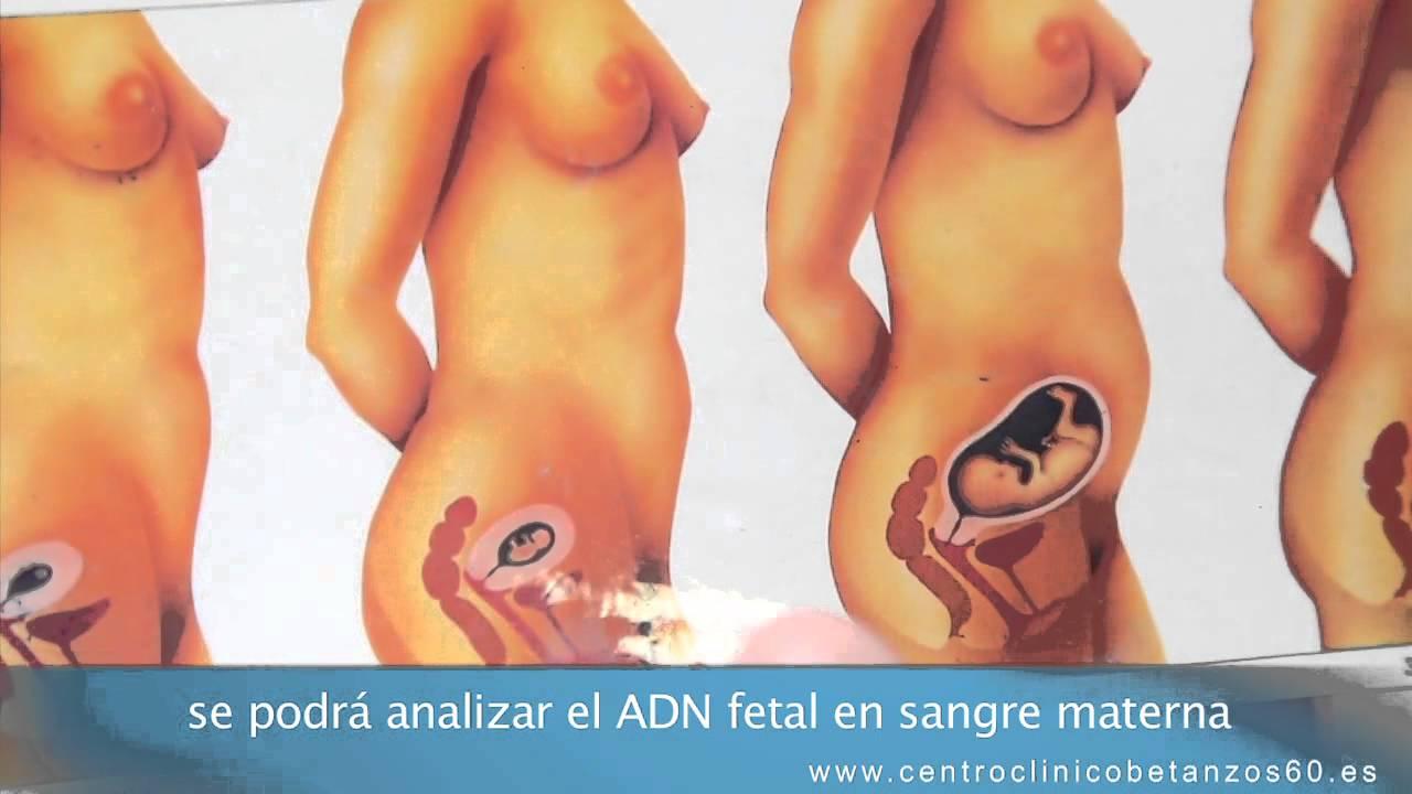 el embarazo: