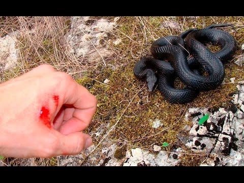Первая помощь при укусах ядовитых насекомых, змей и