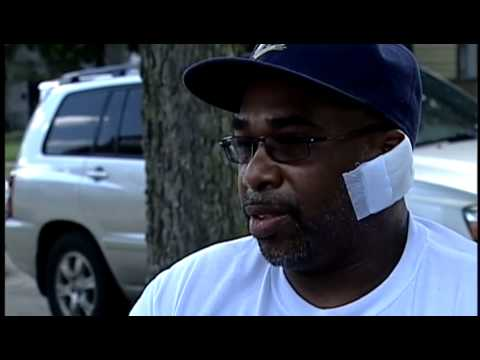 Man mauled by pit-bull speaks for first time