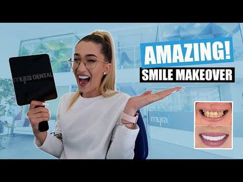 Smile Makeover Review [All on 6 Dental Implants | Veneers Turkey]