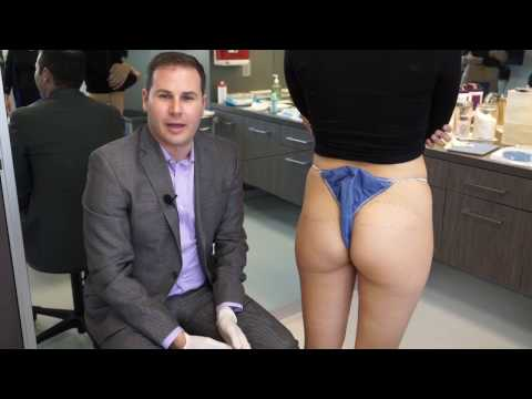Sculptra Filler for Buttock Augmentation