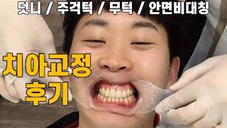 치아교정 후기  l 양악수술 후 교정 l 유지장치 l …