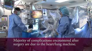 TrinityTALK edu - TECAB - Minimally Invasive Coronary Artery Bypass Surgical Technique