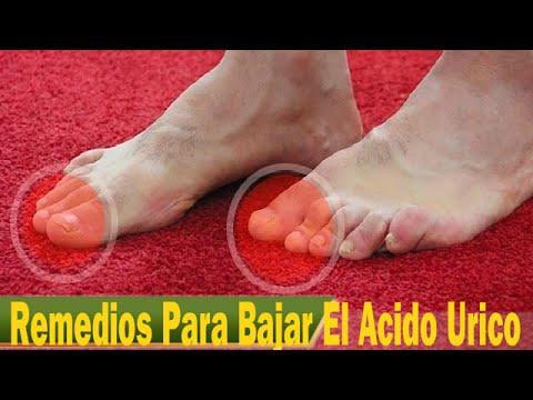 remedios naturales acido urico o gota pina acido urico como saber si tienes gota en el pie
