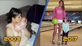 Так выглядит самая маленькая девочка в мире 14 лет спустя. Доктора не могут поверить