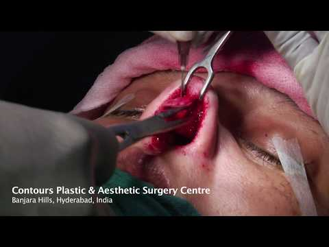 Plastic surgery in Hyderabad | Cosmetic Surgery Hyderabad |Contours