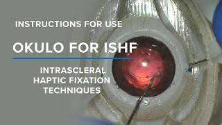 BIONIKO - OKULO BR8 for Intrascleral Haptic Fixation (ISHF) Instructions for Use