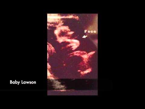 Little Lawson Heartbeat