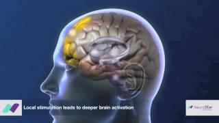 NeuroStar Mechanism of Action