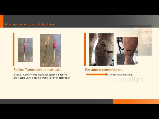 Traitement combiné mini-invasif une approche moderne / Combined mini-invasive treatment