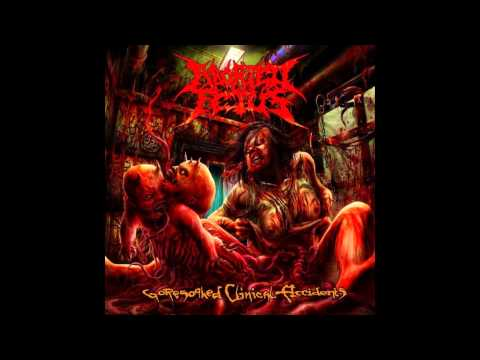 Aborted Fetus - Goresoaked Clinical Accidents [FULL ALBUM]
