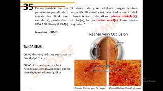 Apabila kita tidak merawat mata, maka bisa mata bisa mengalami gangguan. Gangguan pada mata, antara .