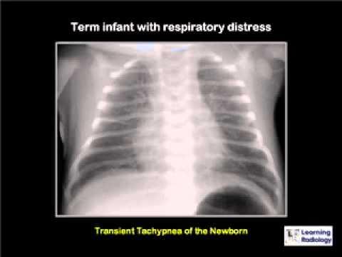 LearningRadiology 18 (Neonatal Lung Disease)