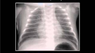LearningRadiology 18 (Neonatal Lung Disease)
