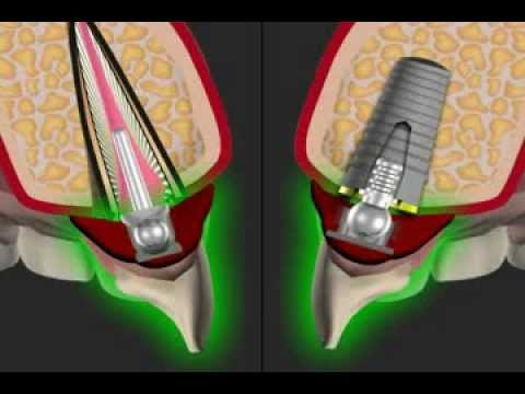better stability for dentures - the Ball Anchor