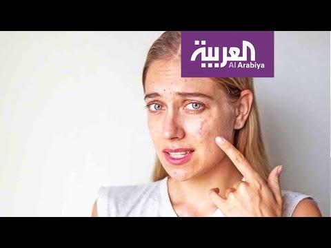 صباح العربية | هكذا يؤثر السكر على بشرتك  - نشر قبل 15 دقيقة