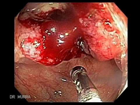 Endoscopy Of Colon Cancer Cecum Youtube