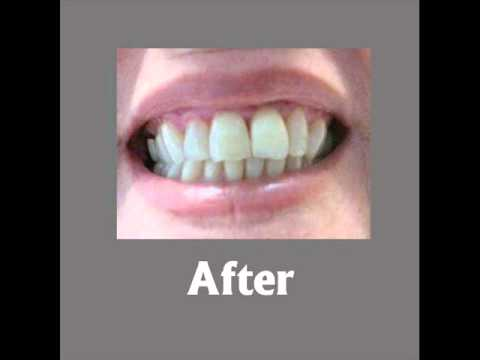Before & After Images from Sea Breeze Dental's Actual Patients