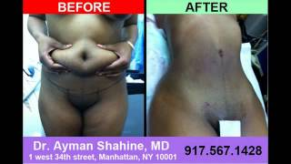 Tummy Tuck Liposuction Before and After Photo 39a