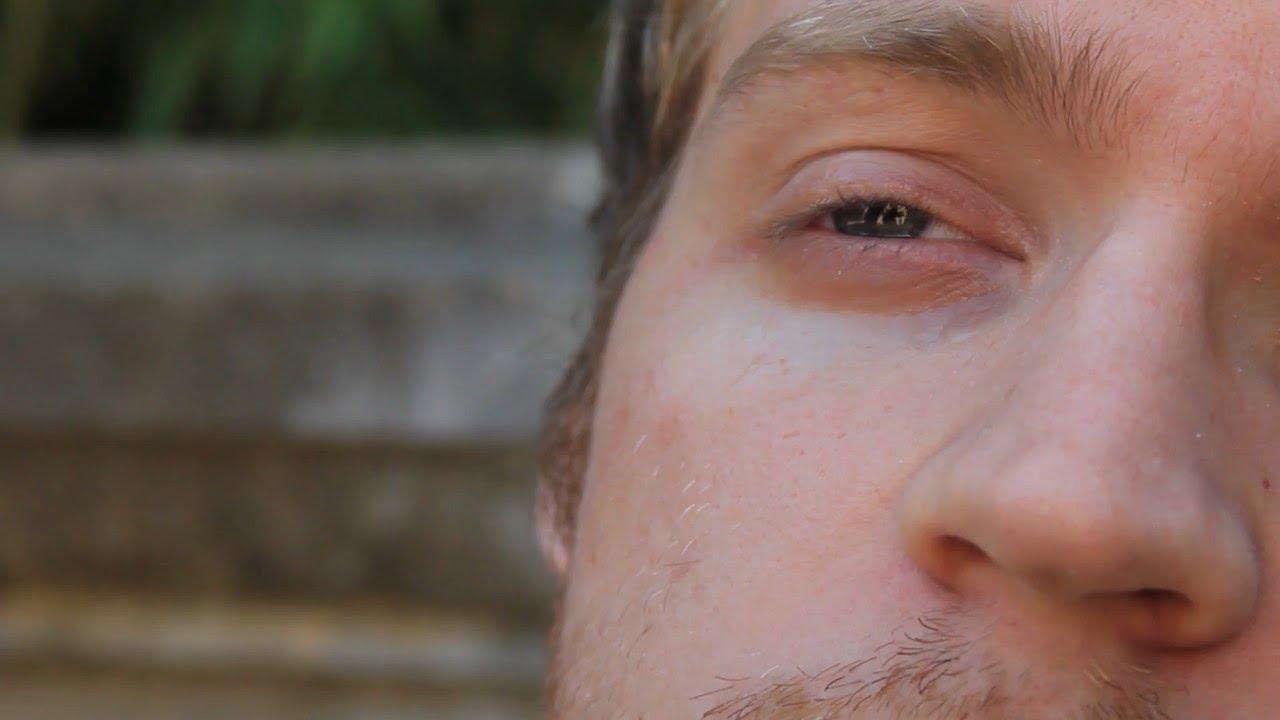 لماذا ترتجف العين اليسرى اليمنى أسباب ارتجاف جفن عين الإنسان اعرف على ماذا يدل ارتجاف جفن العين Youtube