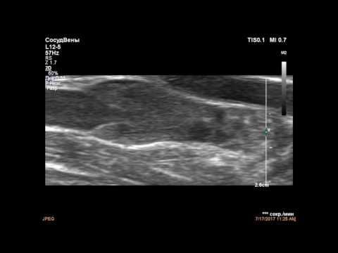 Синдром Педжета-Шреттера – причины, симптомы и лечение
