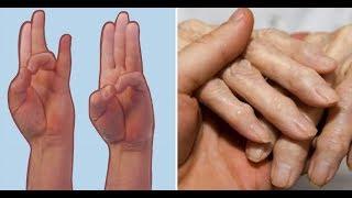 5 продуктов, которые могут помочь или уменьшить боль при Артрите