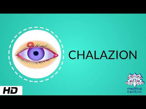 CHALAZION, Causes, Signs and Symptoms, Diagnosis and Treatment.