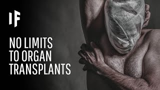 What If There Were No Limits to Organ Transplantation?