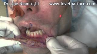 Bloodless Lip Reduction on a Caucasian Patient with CO2 Laser by Dr. Joe Niamtu, III