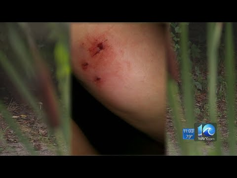Virginia Beach Woman Attacked By Aggressive Fox, Treated For Rabies Shares Ordeal
