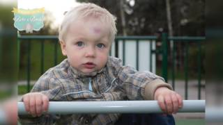 ¿Qué pasa cuando mi hijo se golpea la cabeza?