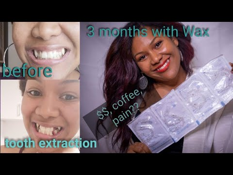 Invisalign | Everything You Need To Know ( Cost, Tooth Extraction, Pain, Coffee, Weight Loss, ...)