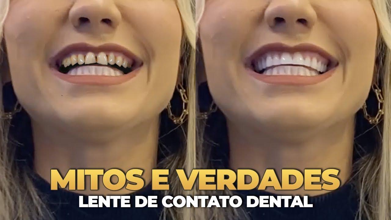 TUDO O QUE VOCE PRECISA SABER ANTES DE COLOCAR LENTES DE CONTATO DENTAL