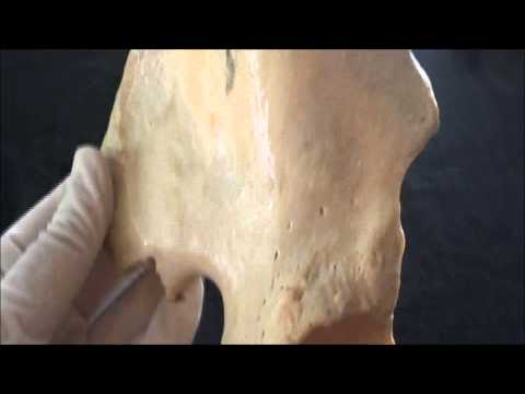 Human Anatomy video: Hip bone - Part 2. - The Ilium