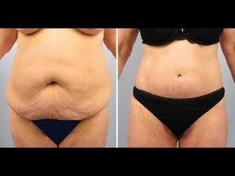 excess skin after weight loss nhsc