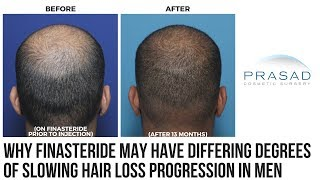 Why Effectiveness of Finasteride Depends on Level of DHT-Sensitivity in Men