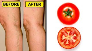 I Applied This Home Remedy To My Varicose Veins, Now They're Gone!