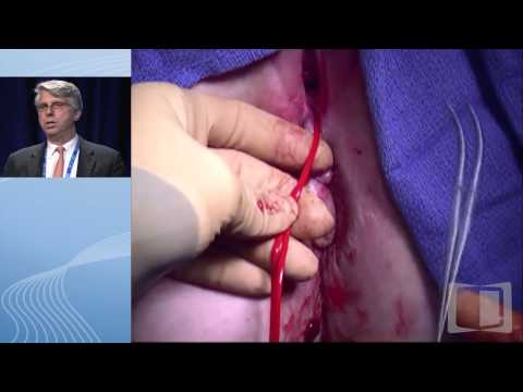 Difficult To Manage Perianal Fistulae And Abscesses In Crohn's Disease Patients