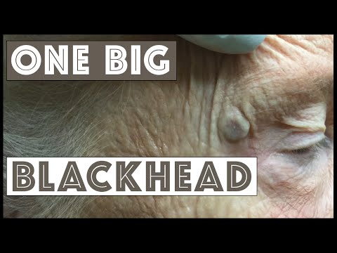 A big blackhead I can't believe I didn't...