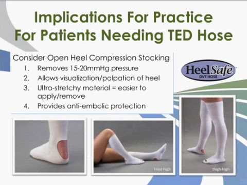 Heel Pressure Ulcers Treatment
